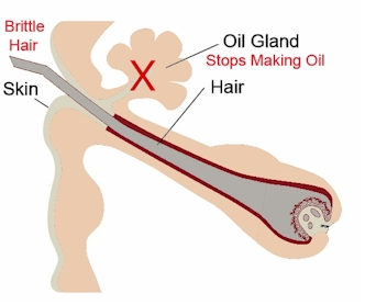 Oil Gland Blocked- hair brittle